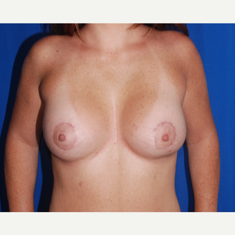 25-34 year old woman treated with Breast Augmentation after 3696150
