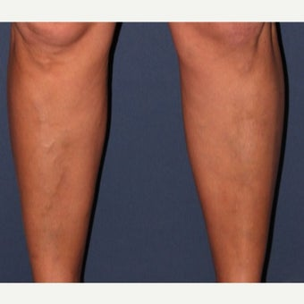 45-54 year old man treated with CTEV Laser Vein Treatment