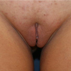 18-24 year old woman treated with Labiaplasty after 3555261