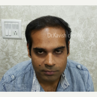25-34 year old man treated with FUE Hair Transplant after 2836633