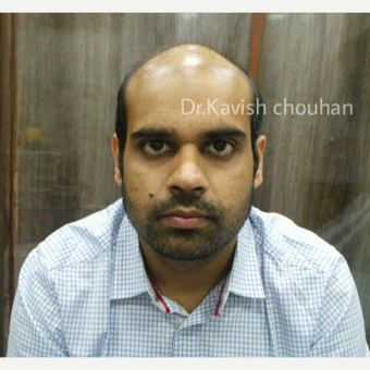 25-34 year old man treated with FUE Hair Transplant before 2836633