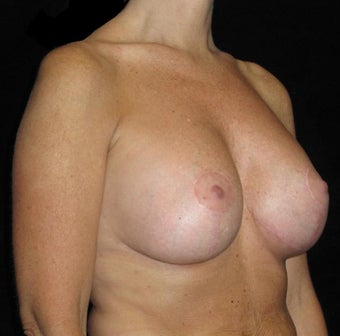 41 year old woman treated with Breast Lift with Implants 3026061