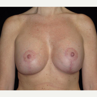 41 year old woman treated with Breast Lift with Implants after 3026061