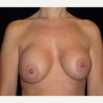 41 year old woman treated with Breast Lift with Implants before 3026061