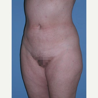 45-54 year old woman treated with Tumescent Liposuction after 2191136