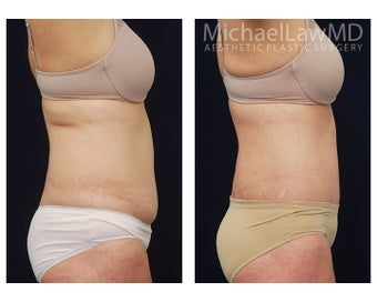 Liposuction before 1323841