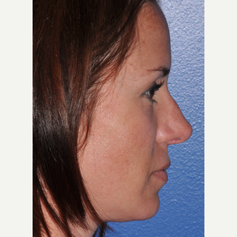Rhinoplasty for Improved Profile and Nasal Tip after 3702971