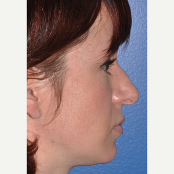 Rhinoplasty for Improved Profile and Nasal Tip before 3702971
