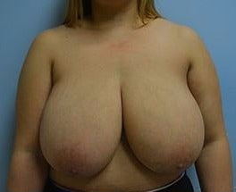 25-34 year old woman treated with Breast Reduction before 3482700
