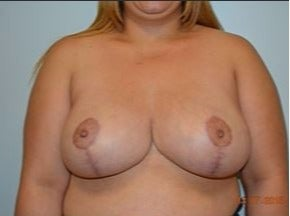 25-34 year old woman treated with Breast Reduction after 3482700