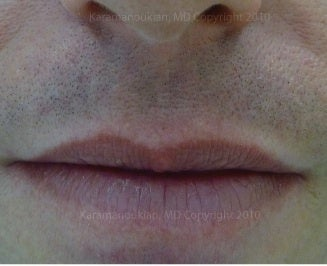Lip scar and incision treatment after 1050523
