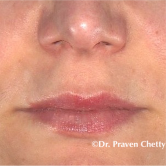 35-44 year old woman treated with Lip Augmentation after 3548939