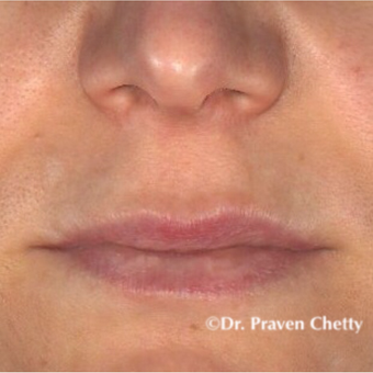 35-44 year old woman treated with Lip Augmentation before 3548939