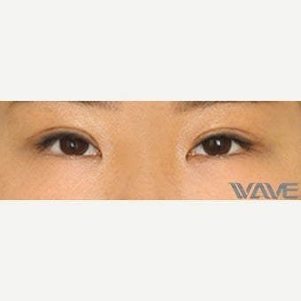 25-34 year old woman treated with Asian Eyelid Surgery after 2507924