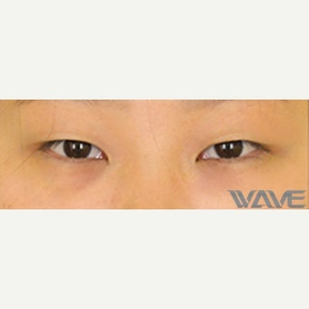 25-34 year old woman treated with Asian Eyelid Surgery before 2507924