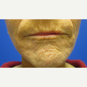55-64 year old woman treated with Fractional Laser after 3802625