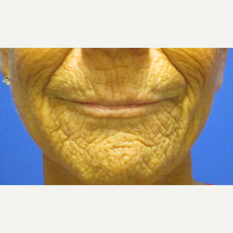 55-64 year old woman treated with Fractional Laser before 3802625