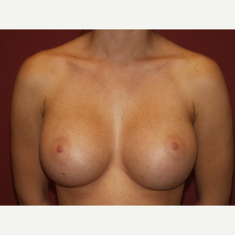 25-34 year old woman treated with Breast Implants after 3124646