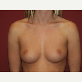 25-34 year old woman treated with Breast Implants before 3124646