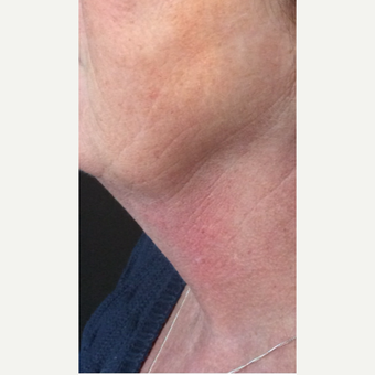 55-64 year old woman treated with Kybella after 3220521