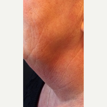 55-64 year old woman treated with Kybella before 3220521
