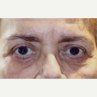 75 and up year old woman treated with Eyelid Surgery after 3083188