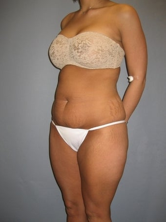 Tummy Tuck for 32 year old mom before 1316601