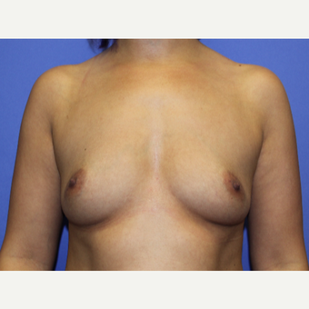 35-44 year old woman treated with Breast Augmentation before 3201013