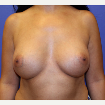 35-44 year old woman treated with Breast Augmentation after 3201013