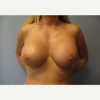 35-44 year old woman treated with Breast Lift with Implants after 3539001