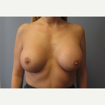 35-44 year old woman treated with Breast Lift with Implants before 3539001