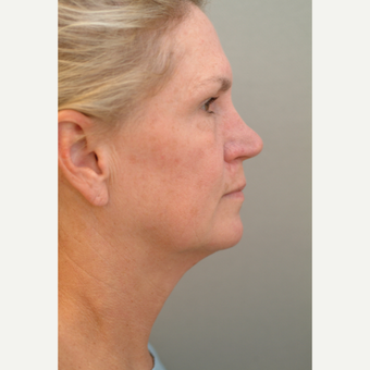 55-64 year old woman treated with Neck Lift before 3764007
