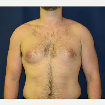 25-34 year old man treated with Male Breast Reduction before 3787124