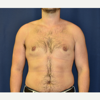25-34 year old man treated with Male Breast Reduction after 3787124