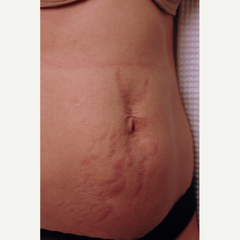 Stretch Mark Removal Before and After Pictures