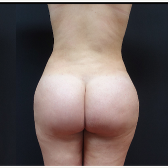 18-24 year old woman treated with Butt Lift after 3315505