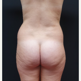 18-24 year old woman treated with Butt Lift before 3315505