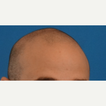 25-34 year old man treated with Hair Transplant before 3066706