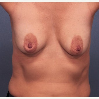 45-54 year old woman treated with Breast Lift with Implants before 2642735