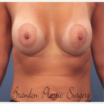 45-54 year old woman treated with Breast Lift with Implants after 2642735