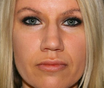 Lip Augmentation after 1477131