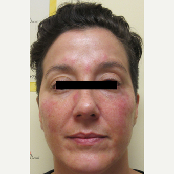 35-44 year old woman treated with Voluma after 3812951
