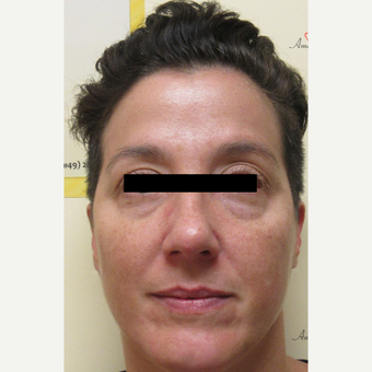 35-44 year old woman treated with Voluma before 3812951