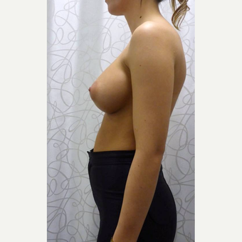 25-34 year old woman treated with Breast Augmentation after 3106548
