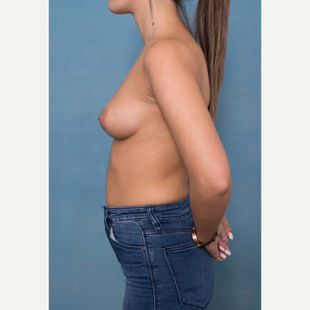 25-34 year old woman treated with Breast Augmentation before 3106548
