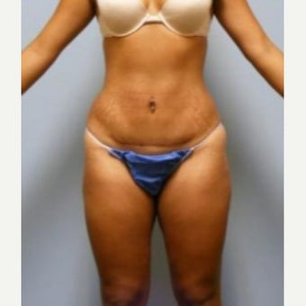 Tummy Tuck after 1597737