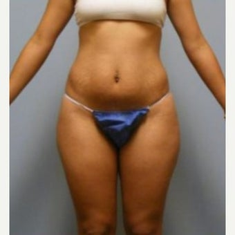 Tummy Tuck before 1597737