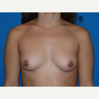 Breast Augmentation before 3807206
