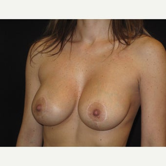 35-44 year old woman treated with Breast Lift with Implants 1906250