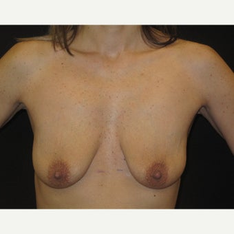 35-44 year old woman treated with Breast Lift with Implants before 1906250